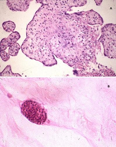 Токсоплазмоз при беременности симптомы и признаки