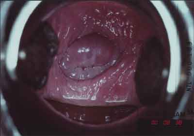 Вид шейки матки в норме и при патологии. Тест с уксусной кислотой