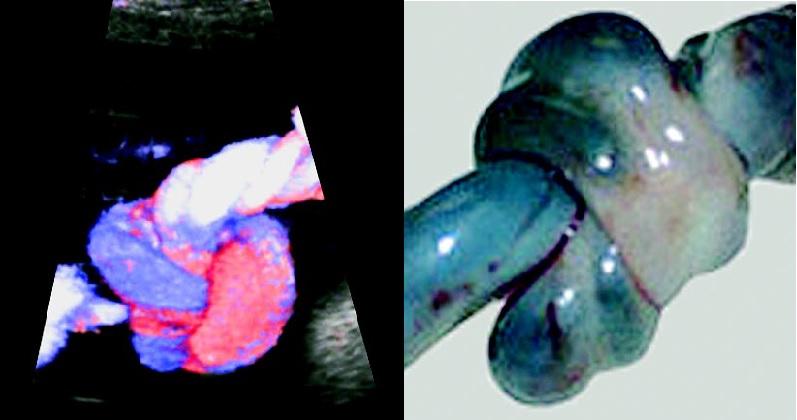 Диафрагмальная грыжа плода у беременных 10